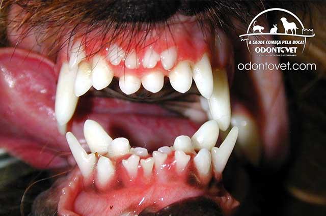 A dentição dupla é quando o dente permanente erupciona mas o dente de leite fica na boca